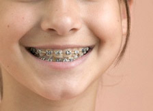 Smiling Girl With Braces --- Image by © Jamie Grill/Corbis